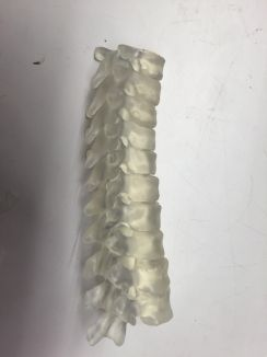 A model of Grace's spine printed on the 3D Formlabs printer